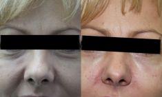 Ultherapy - Photo before - ARS ESTETICA – Klinika Medycyny Estetycznej i Laseroterapii