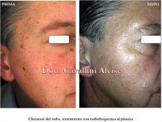 Dott. Alvise Cavallini MD, PhD - Foto del prima - Dott. Alvise Cavallini MD, PhD