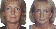 Facelift (operace obličeje), SMAS lifting - fotka před - doc. MUDr. Jan Měšťák, CSc.