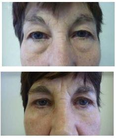 Operace očních víček (Blefaroplastika) - fotka před - OB Care