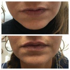 Augmentation des lèvres (injection de graisse) - Cliché avant