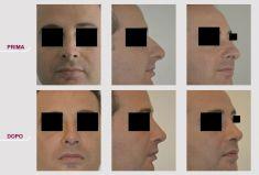 Rinosettoplastica (rinoplastica e settoplastica) - Foto del prima - Prof. Carlo Grassi