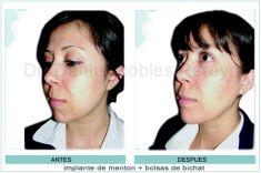 Mentoplastia - Foto Antes de - Dr. Daniel Robles Pereyra