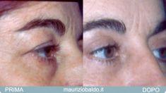 Blefaroplastica inferiore - Foto del prima - Dott. Maurizio Baldo M.D.