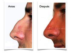 Cirugía de la nariz (Rinoplastia) - Foto Antes de - Dr. Ruben F. García Guilarte