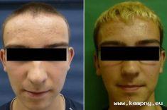 Operace uší (Otoplastika) - fotka před - MUDr. Tomáš Kempný Ph.D.