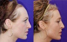 Greffe de cheveux - Pas de cicatrices: la technique rend la procédure quasi invisible aux autres.