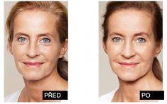 Skinbooster – Vital Injector - Plošné omlazení pokožky, nejlepší hydratace