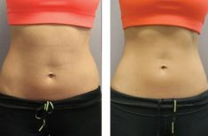 CoolSculpting - Photo before - Lazeo Clinic