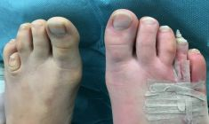 Aesthetic foot and ankle surgery - Photo before