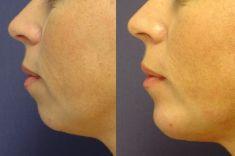 Operace brady - Profiloplastika - fotka před - MUDr. Jana Vybulková Zavadilová