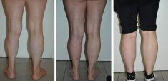 Lipofilling (grasso) - Foto del prima - Dott. Gianluca Campiglio