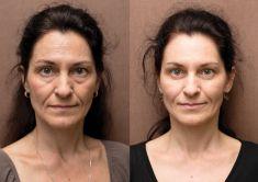 Odstranění vrásek pomocí botulotoxinu - Odstranění hlubokých vrásek na čele, foto před a po ošetření.