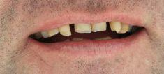 Keramické korunky - Fotka pred - Andel Elite Dental Center