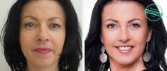 Operace očních víček (Blefaroplastika) - fotka před - Brandeis Clinic by Lucie Kalinová