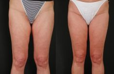 Thigh Lift Surgery - Photo before - Dr Jacques Buis