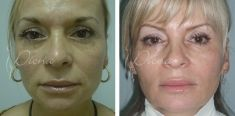 Antiaging - Photo before