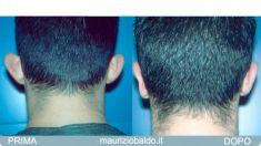Operazione orecchie (Otoplastica) - Foto del prima - Dott. Maurizio Baldo M.D.