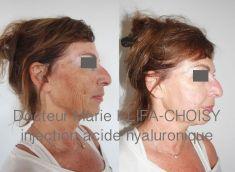 Dr Marie Klifa-Choisy - http://www.chirurgie-esthetique-nice.fr/medecine-esthetique/injections/injections-acide-hyaluronique/