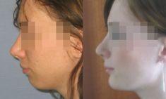 Operacje plastyczne brody  - Zdjęcie przed - Dr Szczyt Klinika Chirurgii Plastycznej