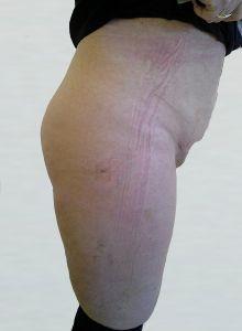 Liposukce - fotka před - OB Care