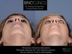 Cirugía de la nariz (Rinoplastia) - Resultado después de 1 año: Técnica abierta Cicatriz imperceptible, resultado impecable