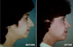 Neck lift - Photo before - Anthony Geroulis M.D.