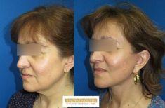 Lifting du visage - Cliché avant - Dr Vincent Nguyen
