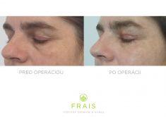 """Operácia očných viečok (Blepharoplastika) - Odstránenie previsu kože u horného viečka a """"kruhov"""" u dolných viečok, na fotke """"po"""" je klientka 14 dní po zákroku"""