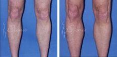 Fat (lipofiling) - Photo before - Violeta Skorobać Asanin MD, PhD