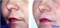 Laser hair removal - Photo before - Azim Jahangir Khan M.D.
