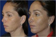 Liposukcja ultradźwiękowa (VASER Lipo®, LipoSelection®) - Zdjęcie przed - Mandala Beauty Clinic