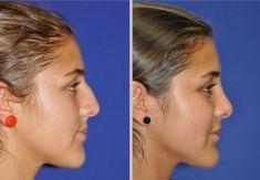 Cirugía de la nariz (Rinoplastia) - Foto Antes de - Dr. Mauricio Pineda