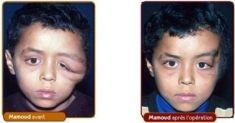 Facial Reconstructive Surgery - Photo before - Dr Gérald Franchi MD