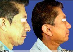 Liposucción de la papada - Foto Antes de - Dr. Carlos Eduardo Lloreda Ramirez