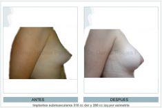 Aumento de senos o mamoplastia de aumento (implantes mamarios) - Foto Antes de - Dr. Daniel Robles Pereyra
