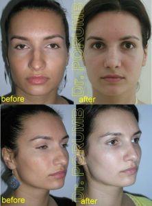 Rhinoplasty (Nose Job) - Photo before - Dr. Serban Porumb