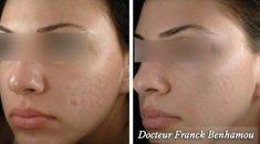 Traitement des cicatrices au laser - Cliché avant - Dr Franck Benhamou