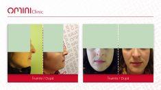 Rhinoplasty (Nose Job) - Rhinoplasty / rinoplastie