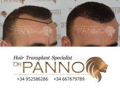 Doctor Ezequiel Panno - Foto Antes de - Doctor Ezequiel Panno