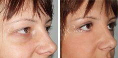 Operacija očnih kapaka (blefaroplastika) - Fotografija prije - Violeta Skorobać Asanin MD, PhD