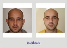Ear surgery (Otoplasty) - Photo before - Dr. Lucian Fodor PhD