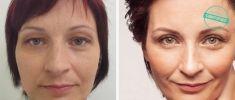 Liposukce - fotka před - Brandeis Clinic by Lucie Kalinová