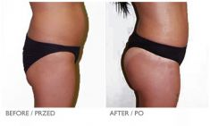 Enlargement and shaping of buttocks and hips - Photo before - Mandala Beauty Clinic