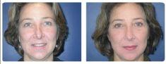 Cirugía de párpados (Blefaroplastia) - Foto Antes de - Dr. Juan Carlos Monroy Mejia
