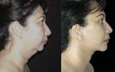 Lifting facial - Foto Antes de - Dr. Basilio Henríquez Tejeda