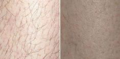 Laser hair removal - Photo before - Brandeis Clinic by Lucie Kalinová