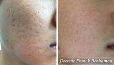 Thérapie par plasma riche en plaquettes (PRP) - Cliché avant - Dr Franck Benhamou