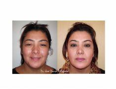 Cirugía de párpados (Blefaroplastia) - Foto Antes de - Dr. Jose David Villafañe Tejeda