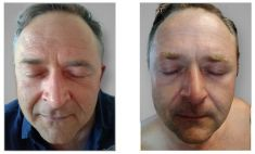 Non Surgical Lift - Photo before - Brandeis Clinic by Lucie Kalinová